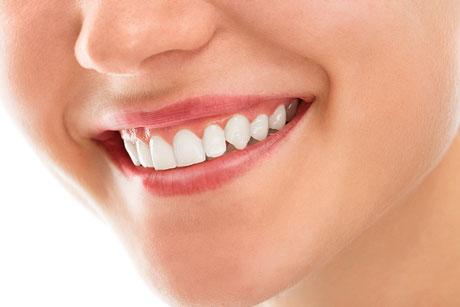 Análisis de la sonrisa