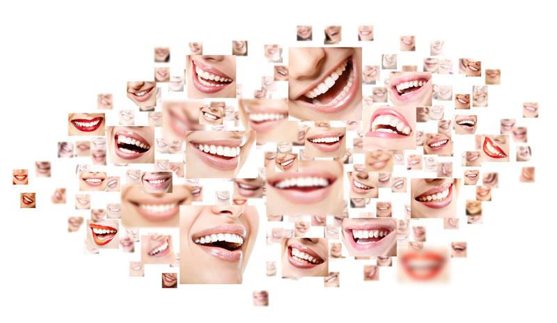 Análisis de perfil para el diseño de sonrisas