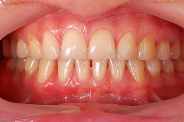 Sangrado de encías, gingivitis y periodontitis