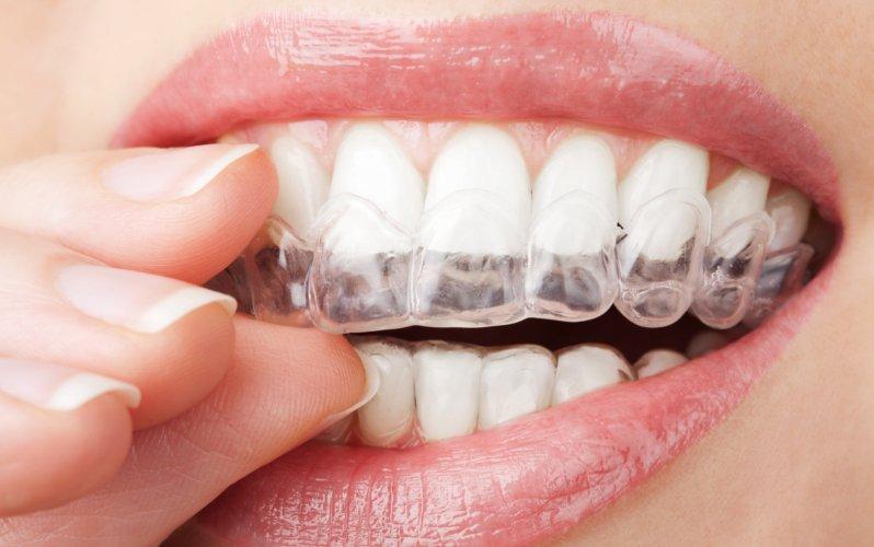 Invisalign, conoce el tratamiento que ha revolucionado la ortodoncia