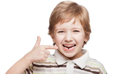 ¿Cómo prevenir las caries en dientes de leche?