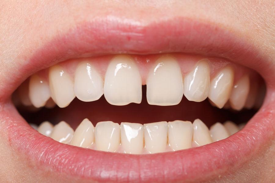 ¿Cómo juntar los dientes separados?