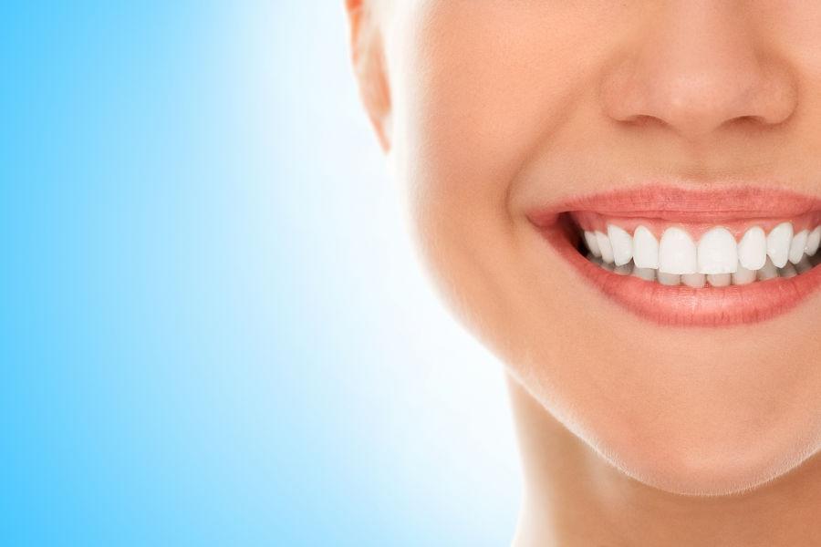 ¿Por qué los famosos tienen los dientes perfectos?