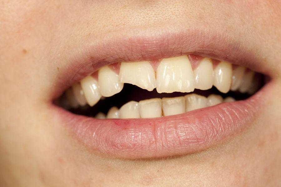 ¿Qué hacer cuando se nos rompe un diente?