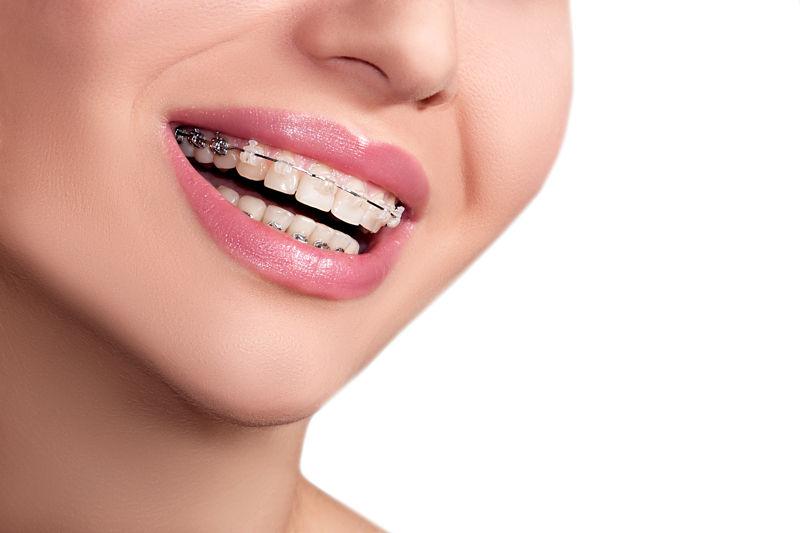 ¿Sabes de dónde viene y cómo funciona la ortodoncia?