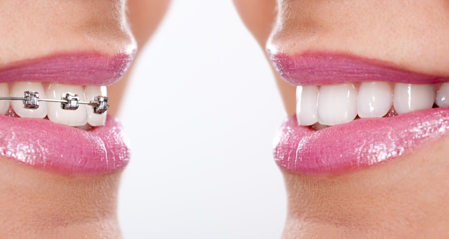 Tipos de ortodoncia que existen