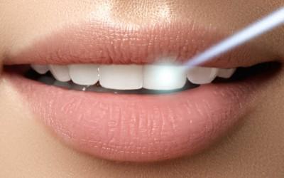10 cosas que debes saber del blanqueamiento dental