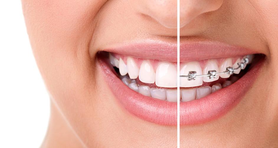 Mayor estética ortodoncia invisible