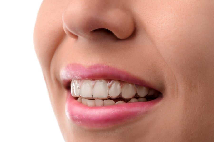 ortodoncia invisalign sant cugat
