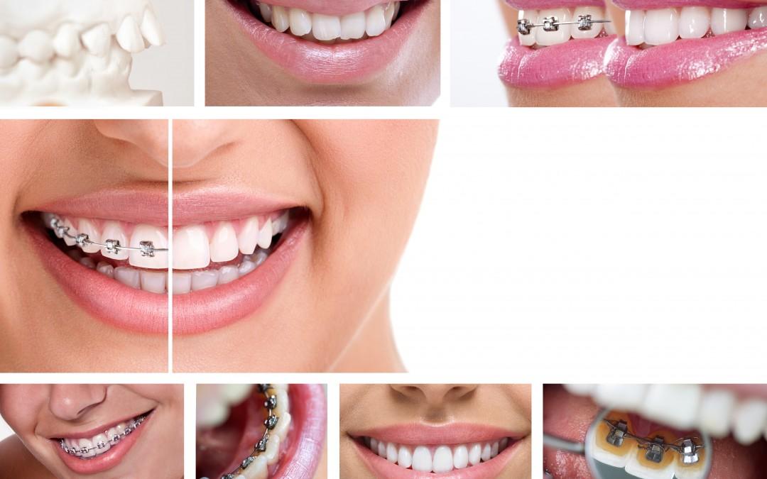 ¿Brackets, ortodoncia lingual o Invisalign?