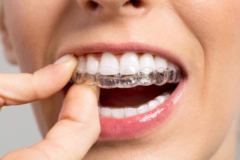 Sonríe con Invisalign, la ortodoncia invisible