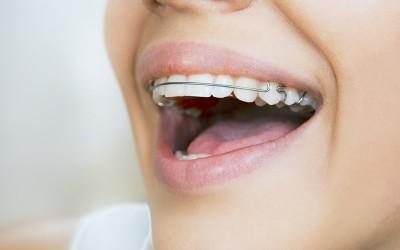 ¿Que es la ortodoncia preventiva, interceptada y correctiva?