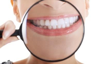 5 preguntas frecuentes del blanqueamiento dental