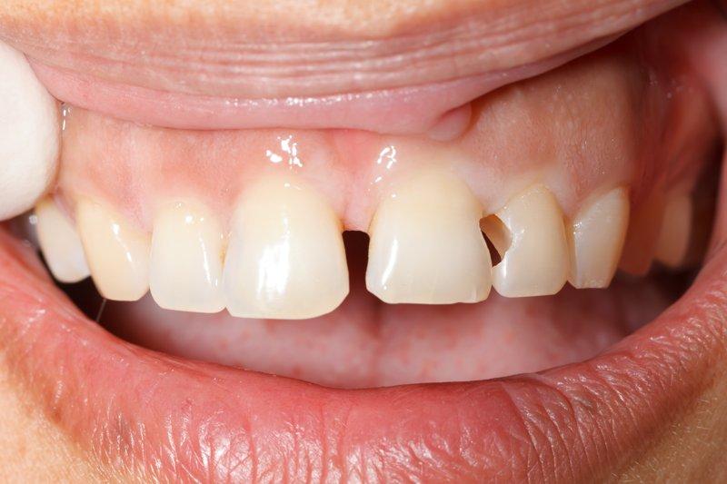 ¿Qué es la abrasión dental y cómo evitarla?
