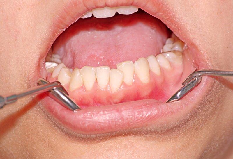 Apiñamiento dental: Qué es y como tratarlo