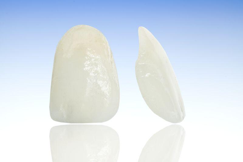 carillas dentales como se colocan