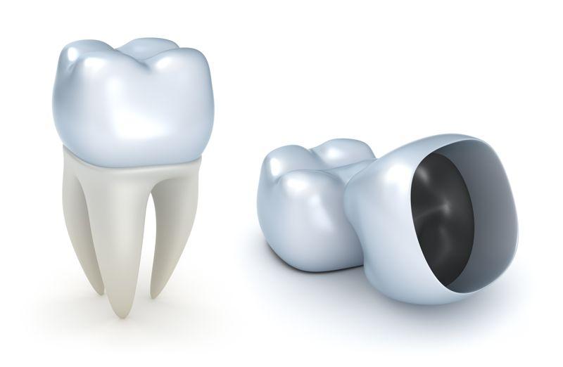 coronas dentales que son