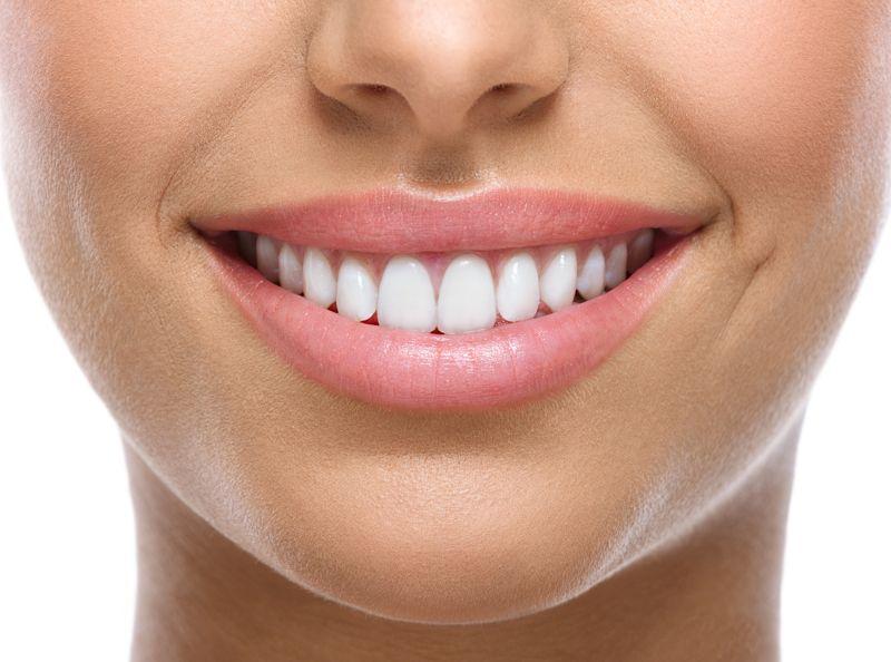 diferencia coronas carillas dentales